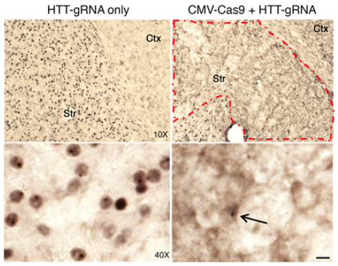 CRISPR/Cas9 gene editing reverses Huntington's in mouse model