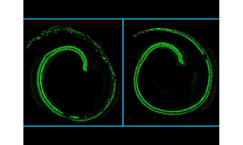 CRISPR therapy preserves hearing in progressive deafness model