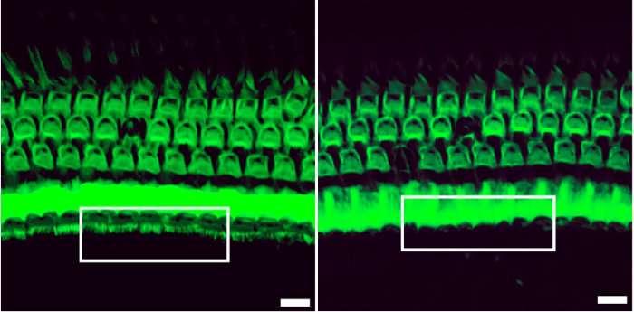 CRISPR treatment prevents hearing loss in mice