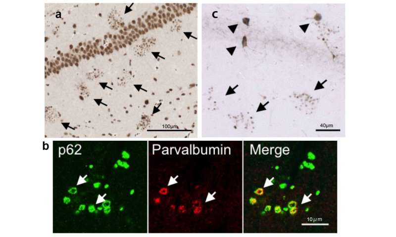 Deadly combination in neurodegenerative diseases revealed