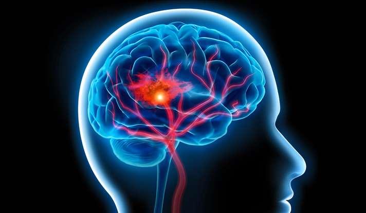 Effort to reduce 'covert' brain injury after cardiac procedures