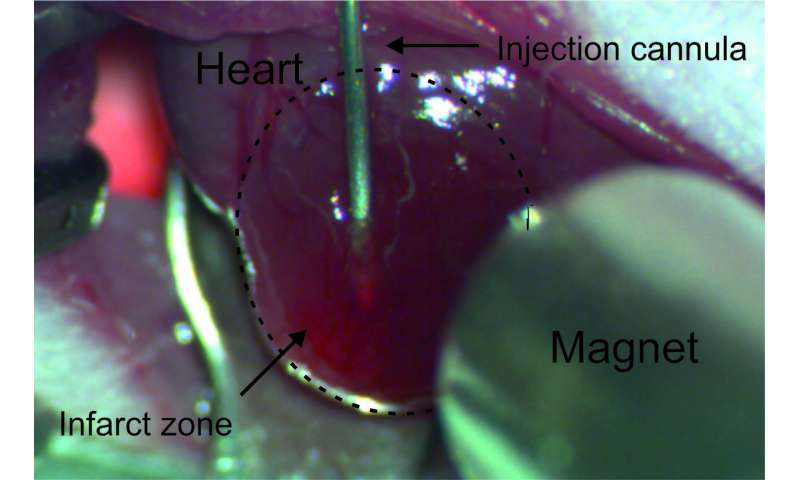 Fighting myocardial infarction with nanoparticle tandems
