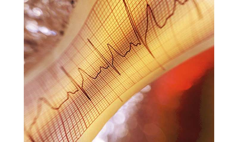 Fragmented QRS predicts cardiac death during exercise