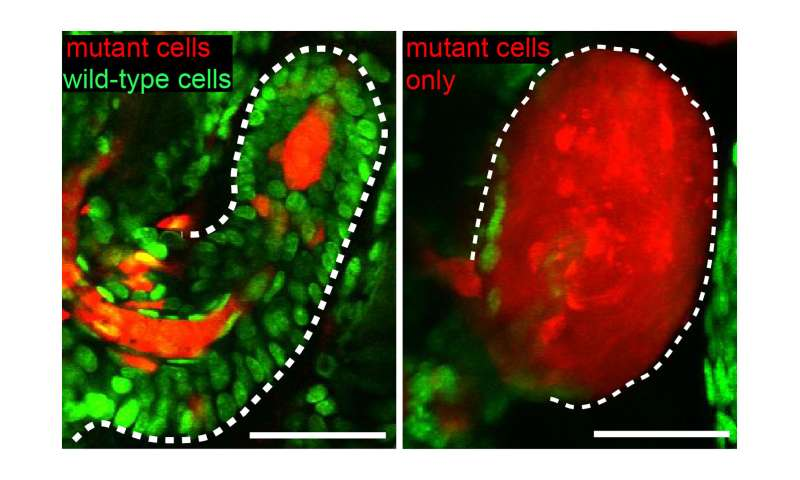 Good cellular neighbors combat incipient cancers