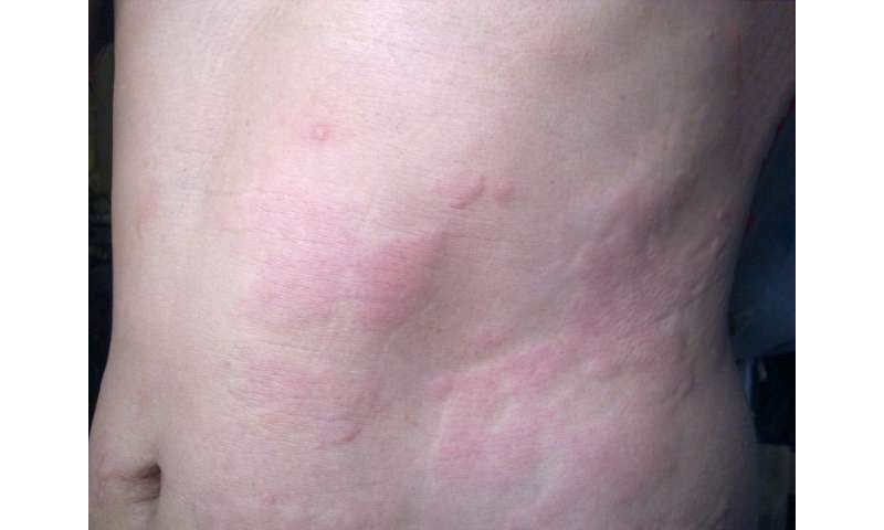 Got hives? Hold the steroids