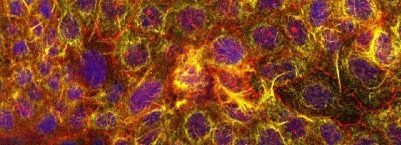 Gut-on-chip good predictor of drug side-effects