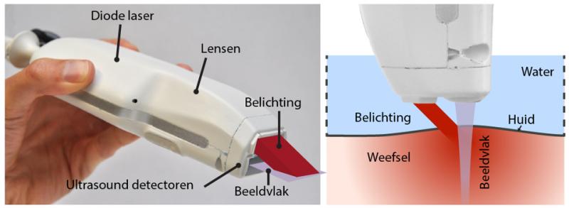 Handy device scans beneath the skin