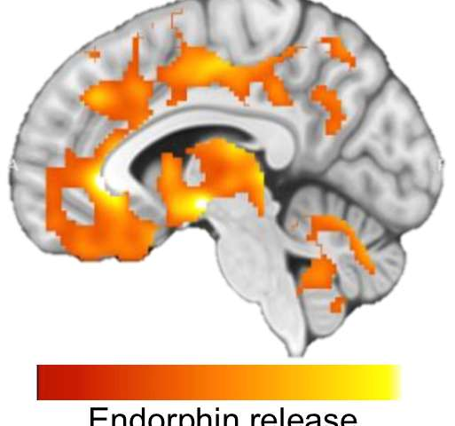 HIIT releases endorphins in the brain