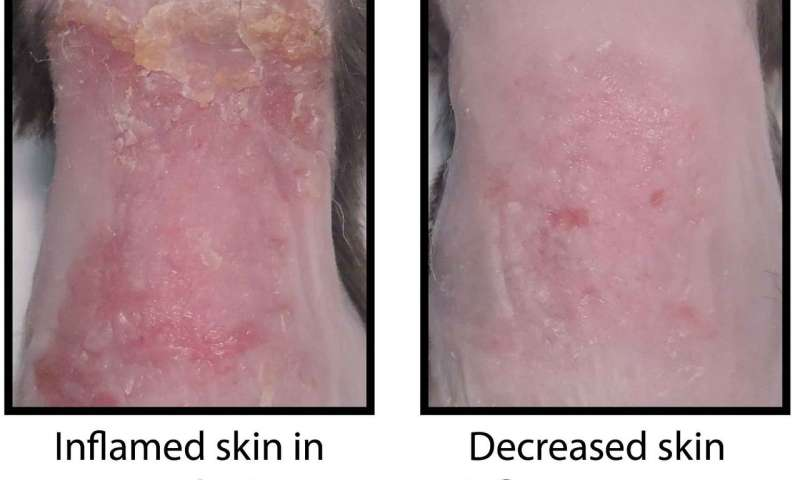 How the skin becomes inflamed