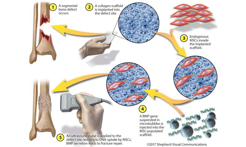 Injured bones reconstructed by gene and stem cell therapies