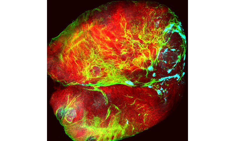 Internal mechanism found to be responsible for the limitless growth potential of epithelial tumours