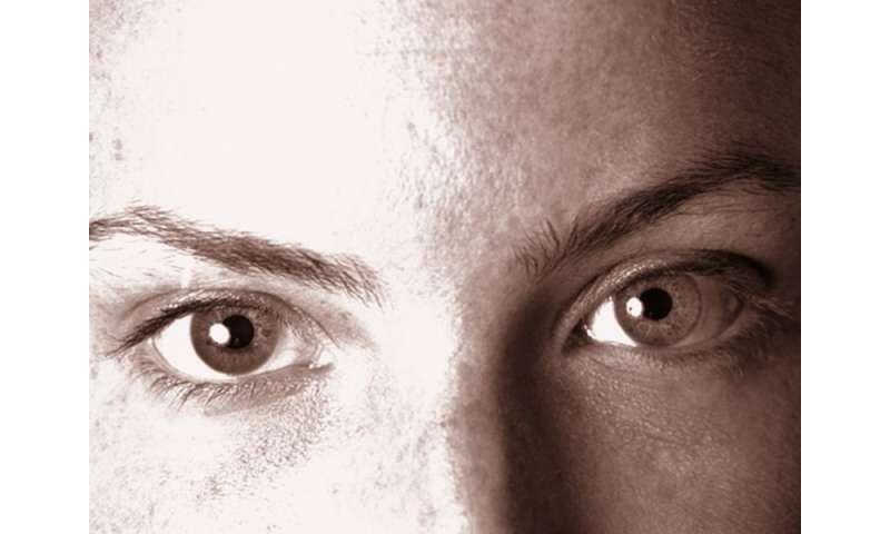 Intradermal LMW-HA injection reduces enlarged facial pores