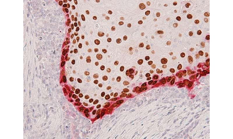 Invasive cells in head and neck tumors predict cancer spread
