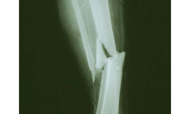 Low serum levels of DHEAS predict fractures in older men