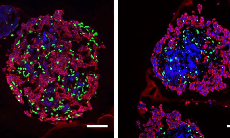 Low thyroid hormone before birth alters growth and development of fetal pancreas