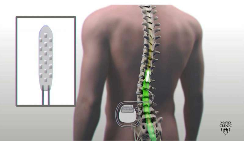 Man moves paralyzed legs using device that stimulates spinal cord