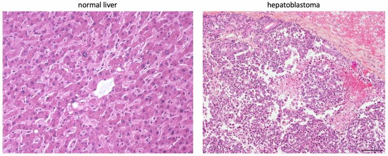 Metabolism can be used to subtype hepatoblastoma tumors