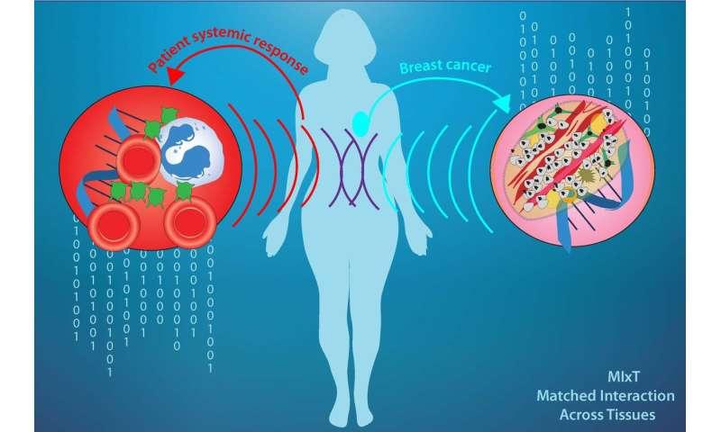 Molecular fingerprint of breast tumors linked to immune response in bloodstream