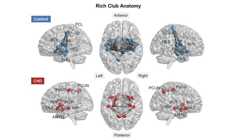 Newborns with CHD show signs of brain impairment even before cardiac surgery