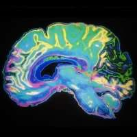 New dye gives scientists a clearer insight into the brain