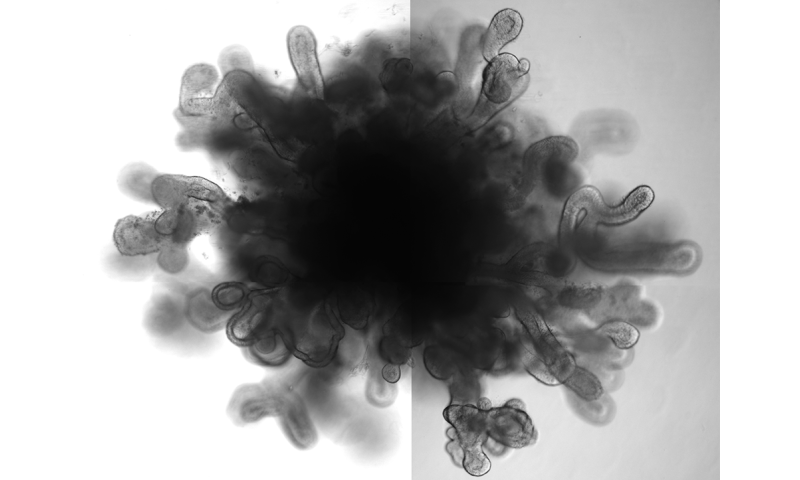 New lung 'organoids' in a dish mimic features of full-size lung