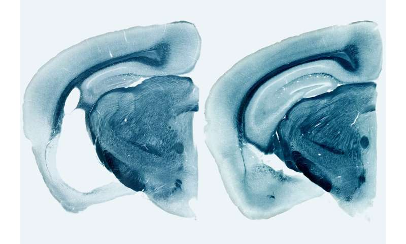 Newly ID'd role of major Alzheimer's gene suggests possible therapeutic target