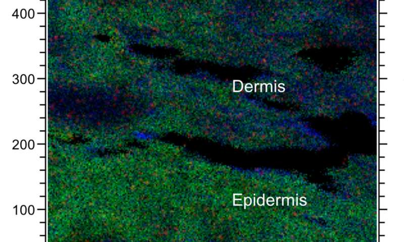 New method maps chemicals in the skin