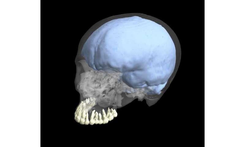 New study finds evolution of brain and tooth size were not linked in humans