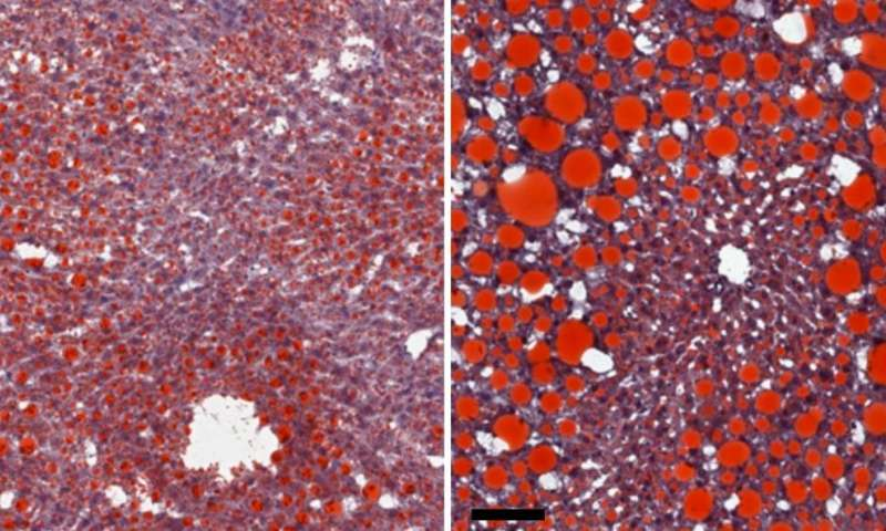 NIH study sheds light on immune responses driving obesity-induced liver disease