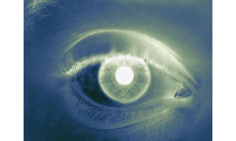 Novel retinal lesion seen in some ebola survivors