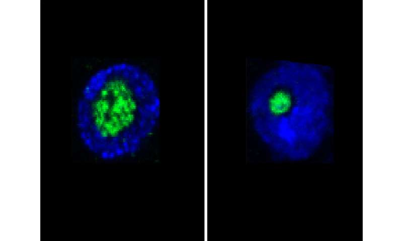 Nucleolus is a life expectancy predictor
