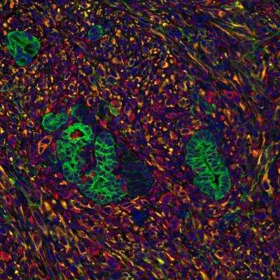 Pancreatic tumors rely on signals from surrounding cells