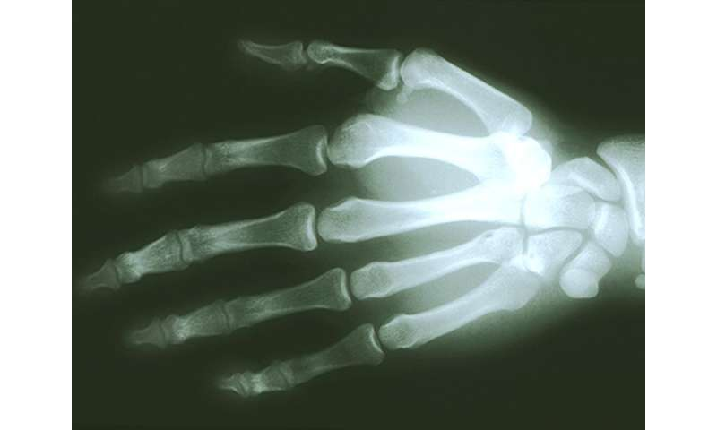 Patient involvement can cut errors in X-ray imaging