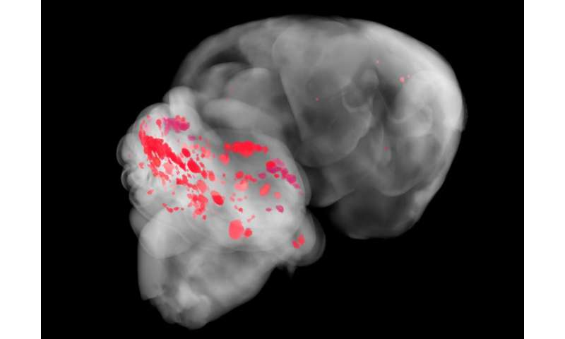 Penn study finds relationship between common brain disease and gut microbiome