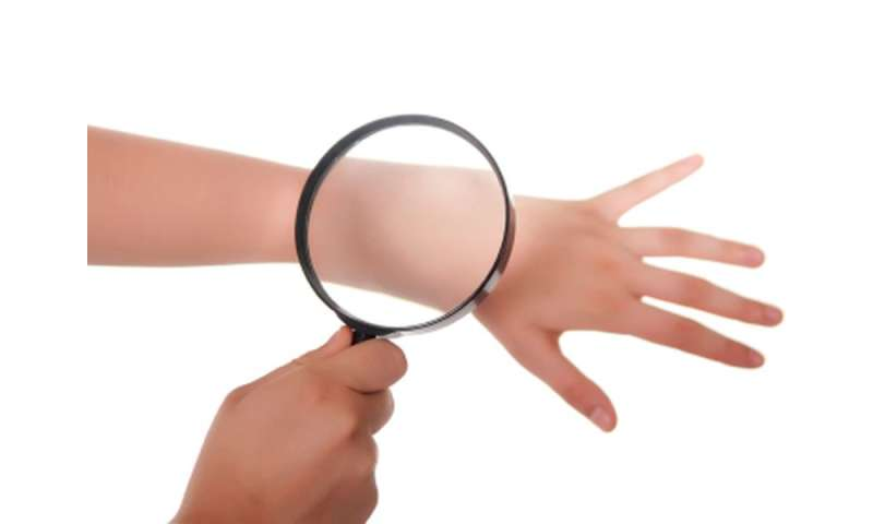 PERFI feasible for in vivo imaging of nonmelanoma skin cancer