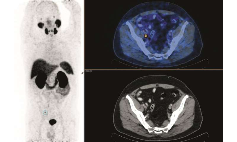Prostate Cancer (Deadly Diseases and Epidemics)