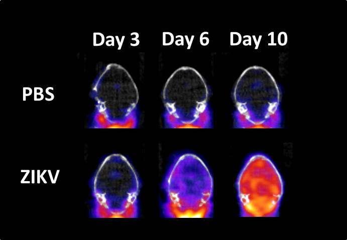 PET imaging tracks Zika virus infection, disease progression in mouse model