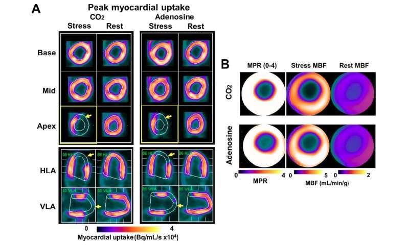 Pet Mr Shows Arterial Co2 As Potent Vasodilator For Cardiac Stress Testing