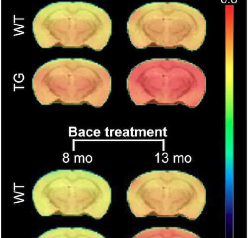 PET tracer gauges effectiveness of promising Alzheimer's treatment
