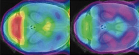 Phagocytes in the brain—Good or bad?