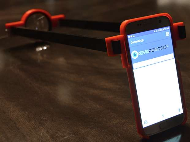 Phone app, 3-D printed lens belong to teenager's system to screen for an eye disease