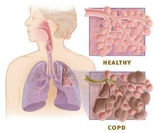 Repurposing heparin for inhalation may offer hope to millions with COPD