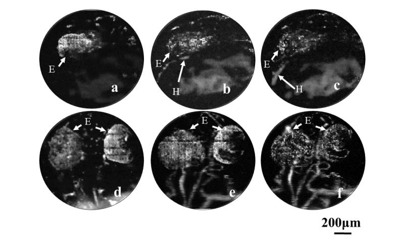 Researchers watch blood vessels develop in whole Zebrafish embryos