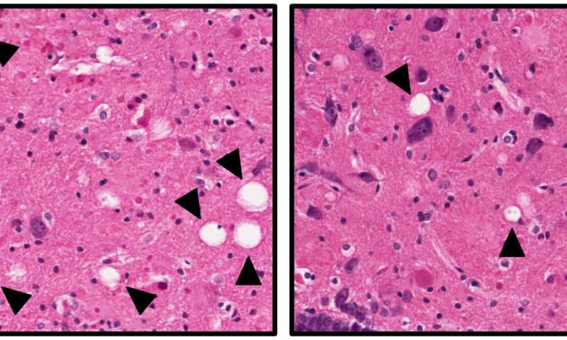 Saving neurons may offer new approach for treating Alzheimer's disease