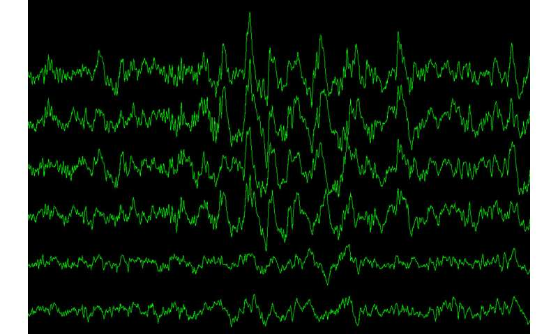 Sleep, Alzheimer's link explained