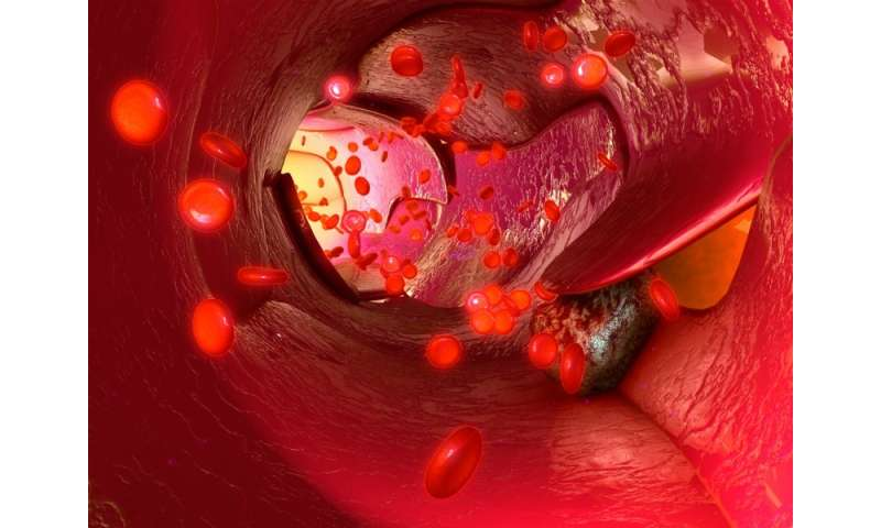 Spaser can detect, kill circulating tumor cells to prevent cancer metastases, study finds