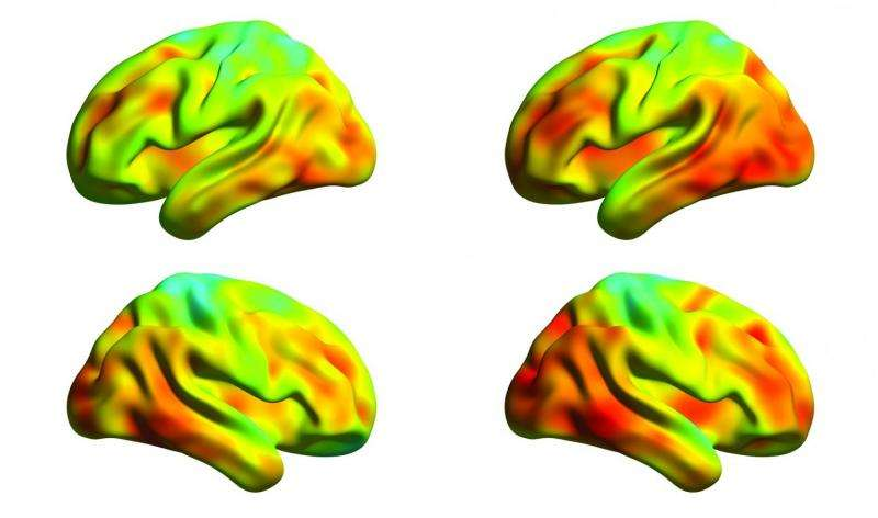 Spread of tau protein measured in the brains of Alzheimer's patients