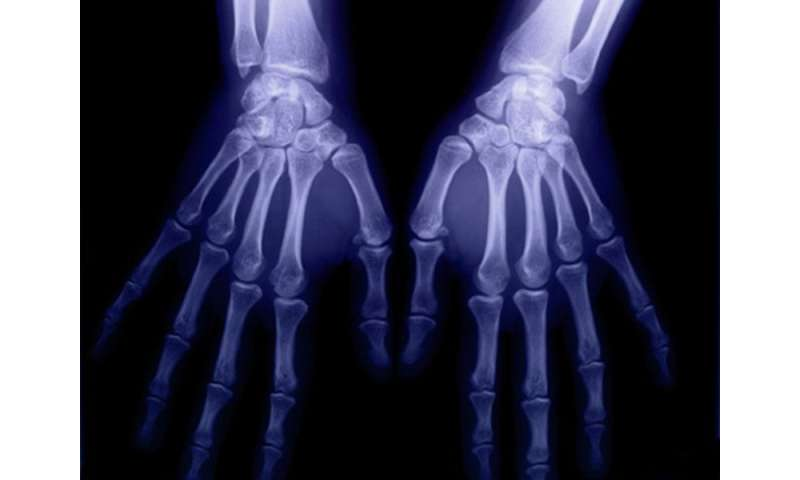 Steroid injection betters hand function with carpal tunnel