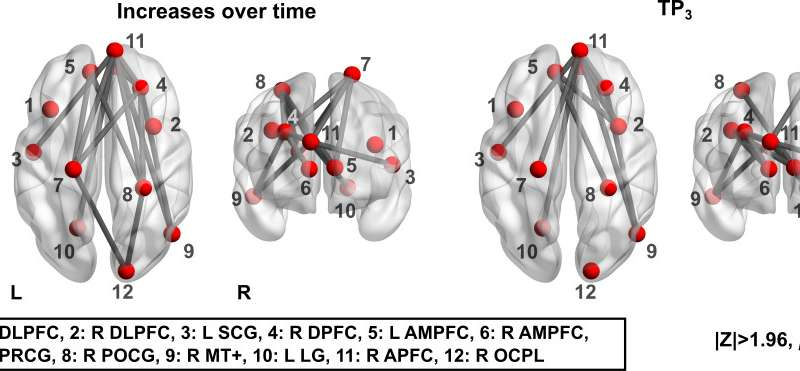 Strategic brain training positively affects neural connectivity for individuals with TBI