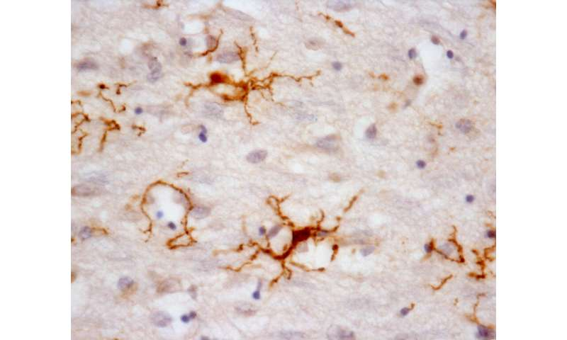 Study of nervous system cells can help to understand degenerative diseases